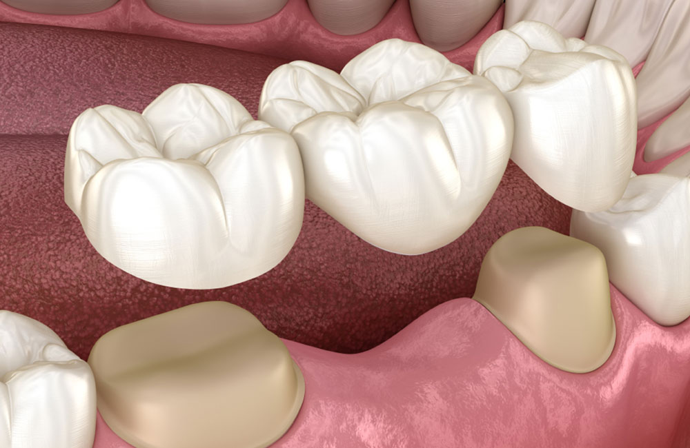 dental bridges in south miami