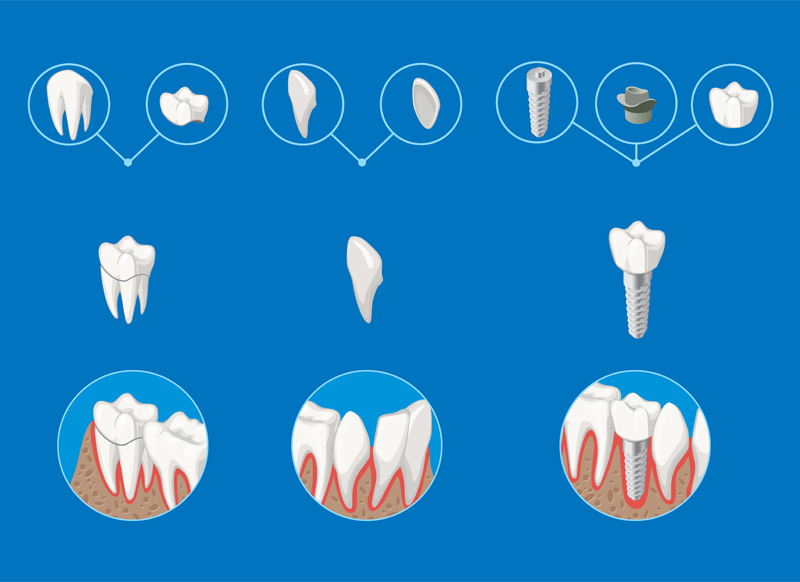 dental implants in south miami