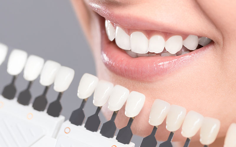 teeth whitening in south miami