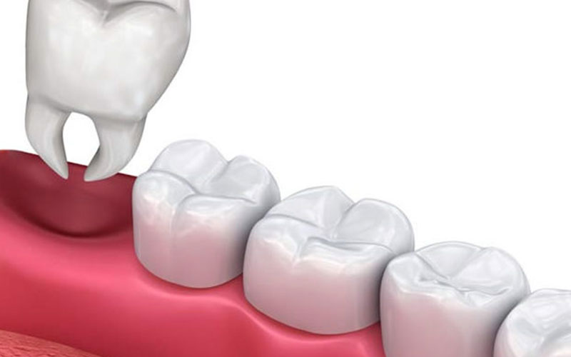 tooth extractions in south miami