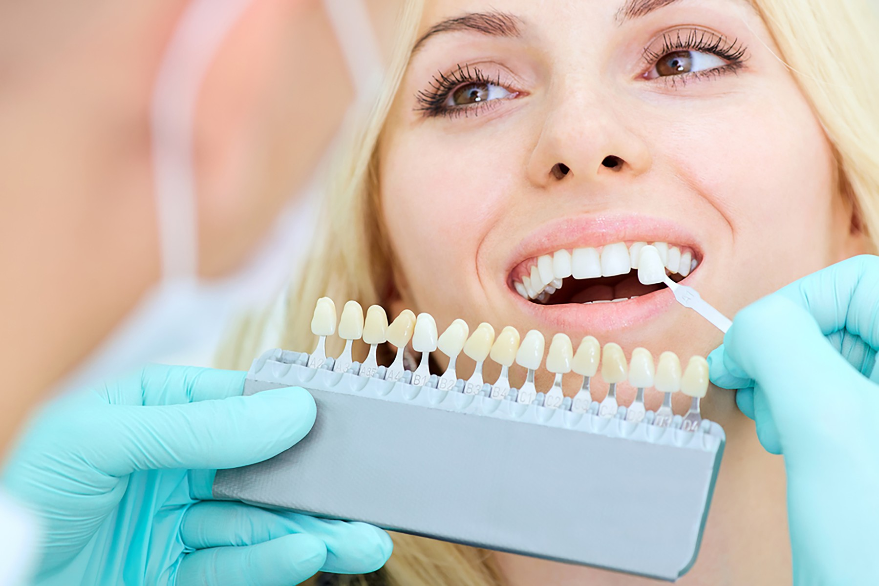 what-are-dental-veneers-and-what-can-they-do-for-you