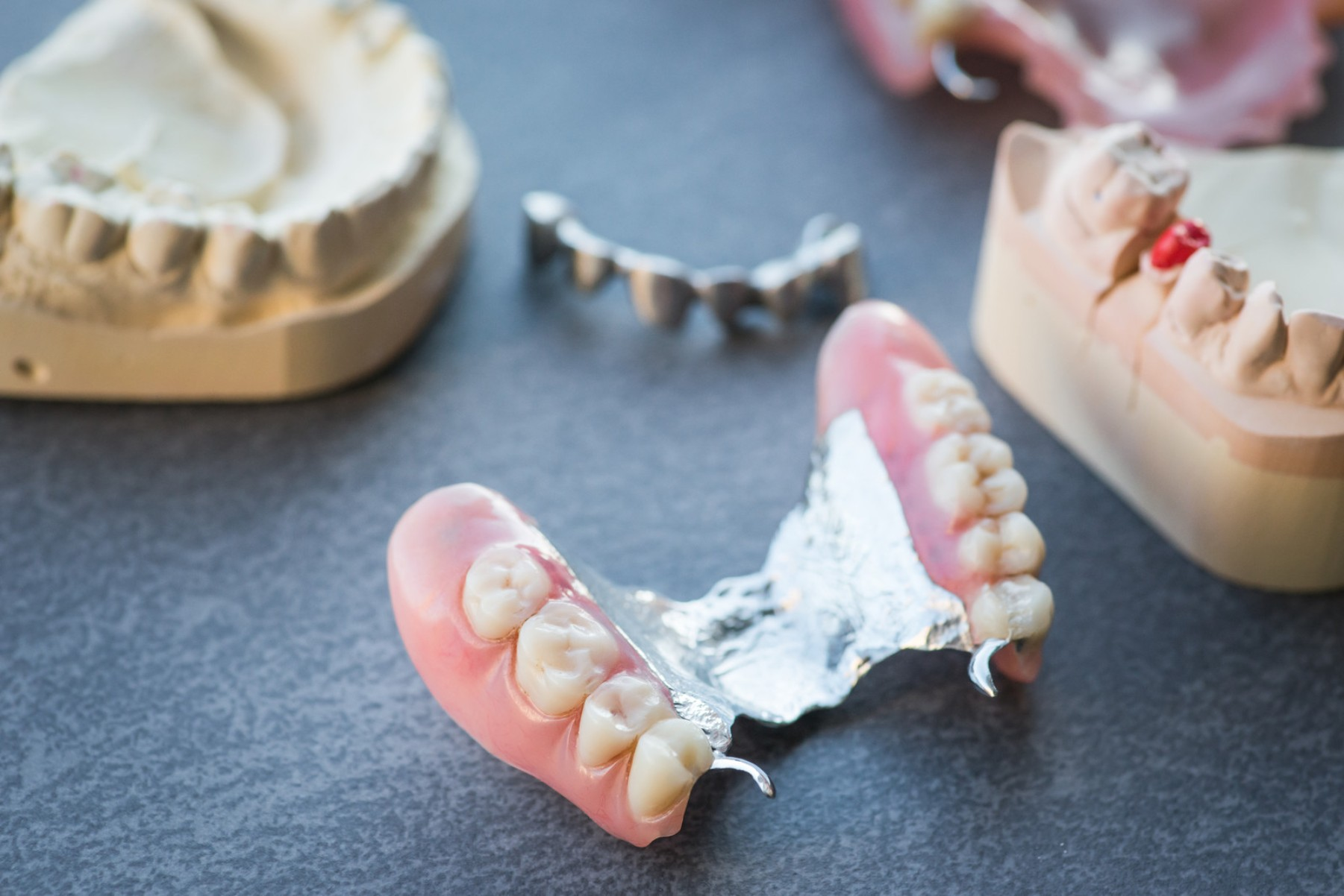 Advantages And Disadvantages Linked To Partial Dentures